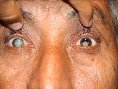 Prevention Of Endophthalmitis After Cataract Surgery